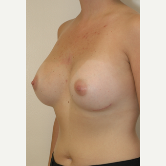 25-34 year old woman treated with Breast Implants after 3854928