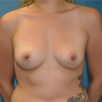 25 year old woman treated with breast augmentation before 3423650