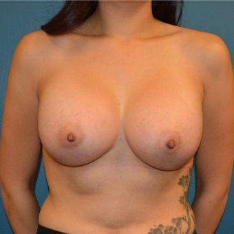 25 year old woman treated with breast augmentation after 3423650