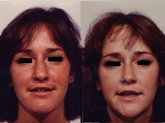 Rhinoplasty before 139103