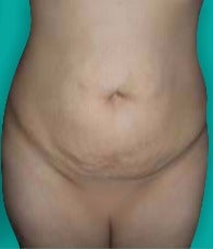 25-34 year old woman treated with Tummy Tuck before 3242118