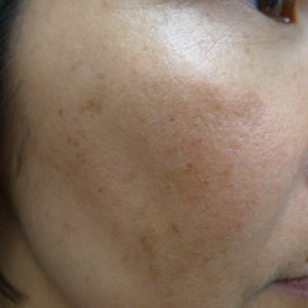 Asian skin type treated with lasers before 2941901