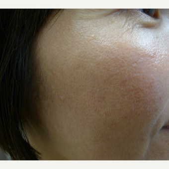 Asian skin type treated with lasers after 2941901