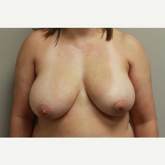 35-44 year old woman treated with Breast Reduction before 3652284