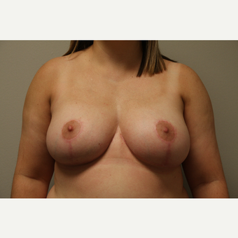 35-44 year old woman treated with Breast Reduction after 3652284