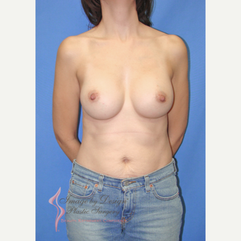 35-44 year old woman treated with Breast Augmentation after 3066595