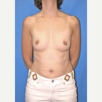 35-44 year old woman treated with Breast Augmentation before 3066595