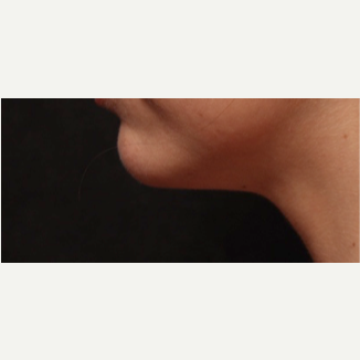 25-34 year old woman treated with Kybella followed by Ulthera to submental area 2 months after 2749651