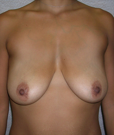 Breast Lift before 1477051