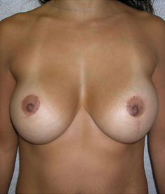 Breast Lift after 1477051