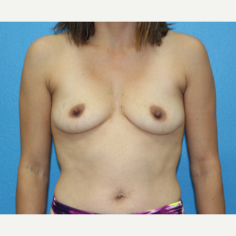 25-34 year old woman treated with Breast Augmentation before 3091019