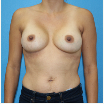 25-34 year old woman treated with Breast Augmentation after 3091019