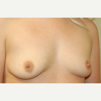 25-34 year old woman treated with Breast Augmentation before 3183308