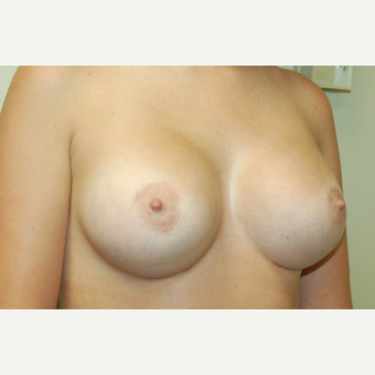 25-34 year old woman treated with Breast Augmentation after 3183308
