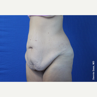 25-34 year old woman treated with Tummy Tuck before 3679741