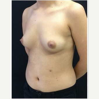 18-24 year old woman treated with Breast Augmentation before 3103488