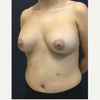 18-24 year old woman treated with Breast Augmentation after 3103488