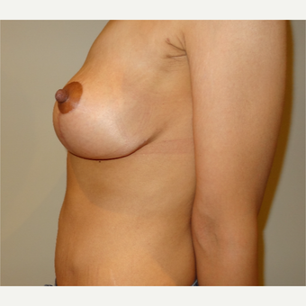 25-34 year old woman treated with Breast Lift after 3203054