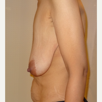 25-34 year old woman treated with Breast Lift before 3203054