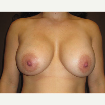 25-34 year old woman treated with Breast Implants after 3423750