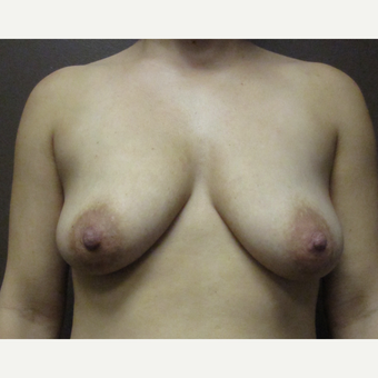 25-34 year old woman treated with Breast Implants before 3423750