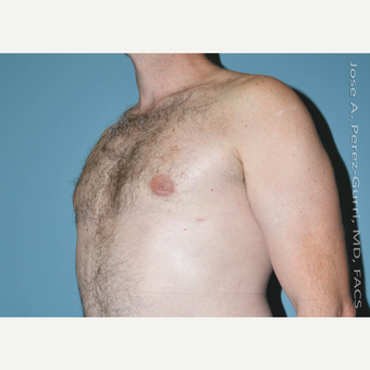 35-44 year old man treated with Male Breast Reduction after 3060172