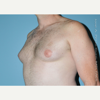 35-44 year old man treated with Male Breast Reduction before 3060172