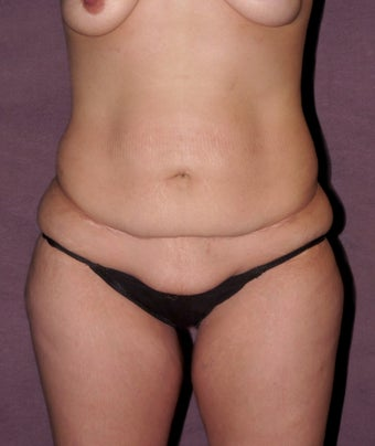 Tummy tuck before 516993