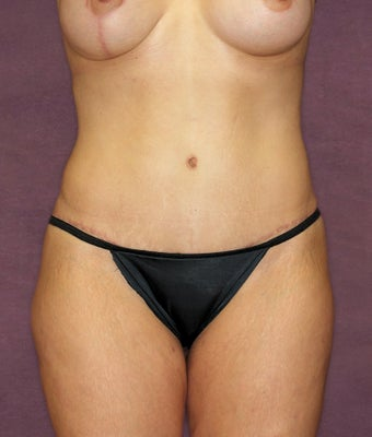 Tummy tuck after 516993