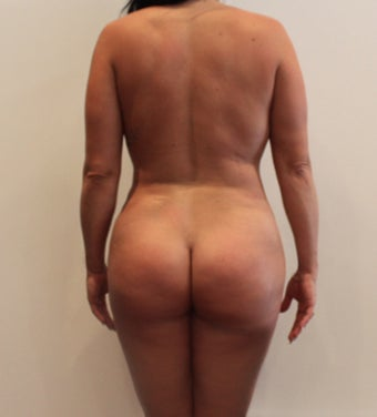35-44 year old woman treated with Brazilian Butt Lift 3338521