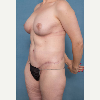 35-44 year old woman treated with Body Lift after 3450552
