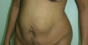 25-34 year old woman treated with Tummy Tuck before 2629770