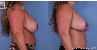 35-44 year old woman treated with Breast Implant Revision after 3844247