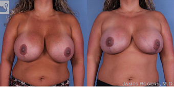 35-44 year old woman treated with Breast Implant Revision before 3844247