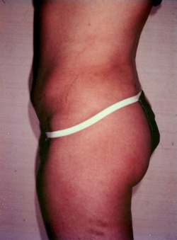 25-34 year old woman treated with Liposuction 1579423