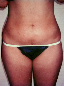 25-34 year old woman treated with Liposuction after 1579423