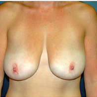 38 year old woman treated with Breast Lift before 3665941