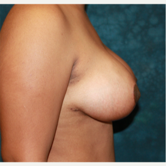 35-44 year old woman treated with Breast Reduction 1715202