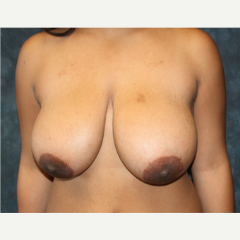 35-44 year old woman treated with Breast Reduction before 1715202