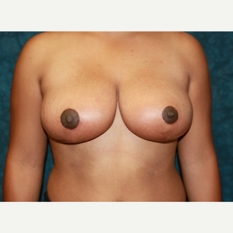 35-44 year old woman treated with Breast Reduction after 1715202