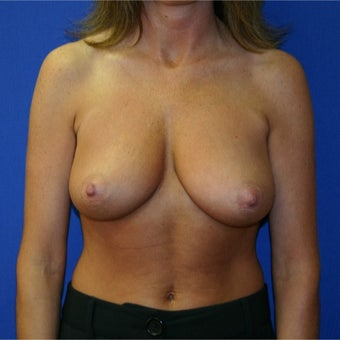 45-54 year old woman treated with Breast Reduction before 1969163
