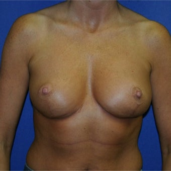 45-54 year old woman treated with Breast Reduction after 1969163