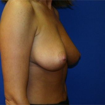 45-54 year old woman treated with Breast Reduction 1969163