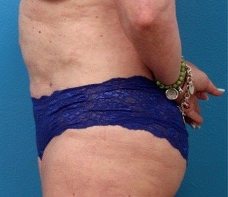 55-64 year old woman treated with Liposuction 3340143
