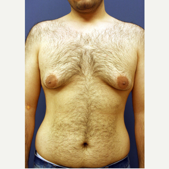 35-44 year old man treated with Male Breast Reduction before 3167771
