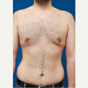 35-44 year old man treated with Male Breast Reduction after 3167771