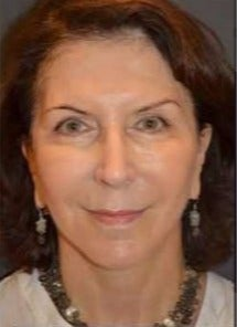 55-64 year old woman treated with Facelift after 3482780