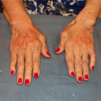 65-74 year old woman treated with Radiesse in the hands after 3484665