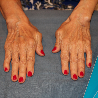 65-74 year old woman treated with Radiesse in the hands before 3484665