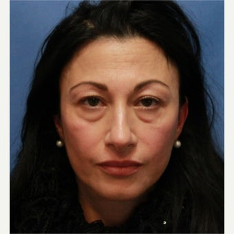 Young patient underwent endoscopic face lifting and 4 lids blepharoplasty before 2353981